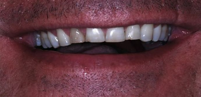 before full mouth rehabilitation