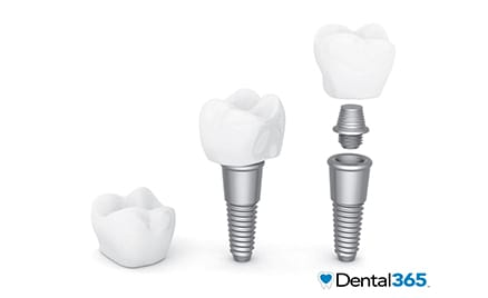 dental implants in Long Island and NYC