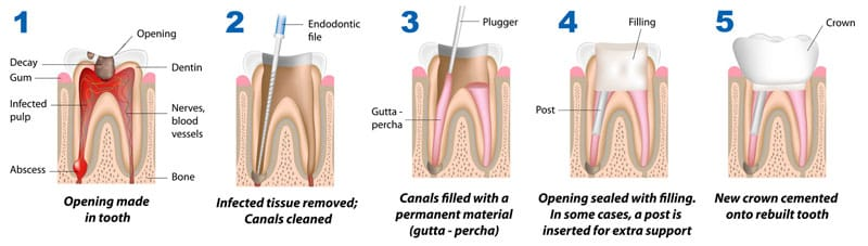 endodontics root canal nyc