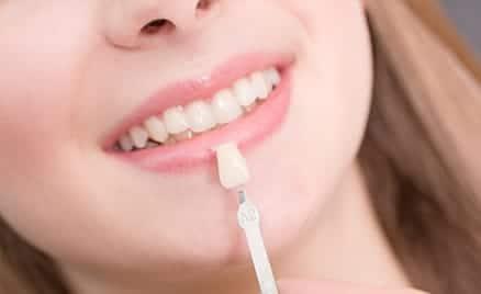 woman smiling with veneers