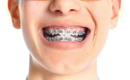Orthodontists Long Island & NYC